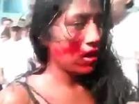 Dievča najprv do krvi zbili.