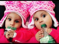 Jedenásťmesačné siamské dvojčatá lekári v Spojených štátoch úspešne oddelili.