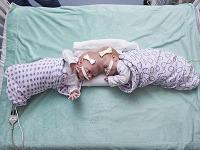Desaťmesačné siamské dvojčatá spojené hlavami úspešne oddelili.