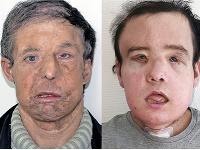 Prvá a druhá transplantovaná tvár