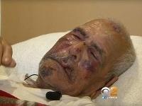 Rodolfo Rodríguez skončil v nemocnici.