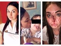 Louise Reedová (27) bola napadnutá expriateľom