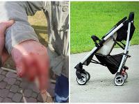 Útok psov: Muž kočíkoval vnúča, to sa snažil ochrániť.