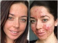 Emily Keelová dlhé roky bojovala s akné.