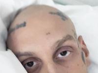 Raper Separ sa po boji s rakovinou pasuje s koronavírusom.