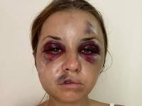 Anastaisha Lygova zažila vo vlaku hororové chvíľky.