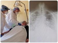 Pandémia covidu vystriedala v bánovskej nemocnici záťaž na interné oddelenie