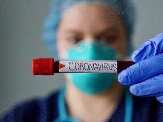 SAV o koronavíruse: Krízu