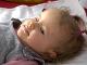 Malí Lívia trpí Canavanovou