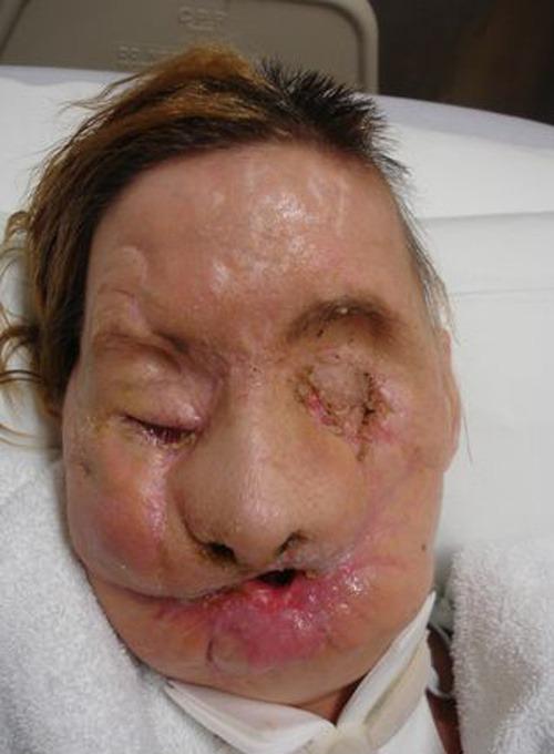Charla Nash, ktorú zmrzačil
