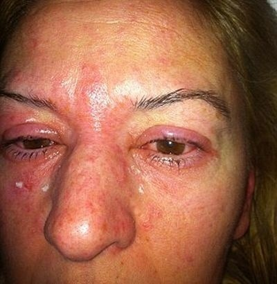 Žena (42) dostala alergiu