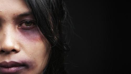 Slovenka prežívala muky, jej