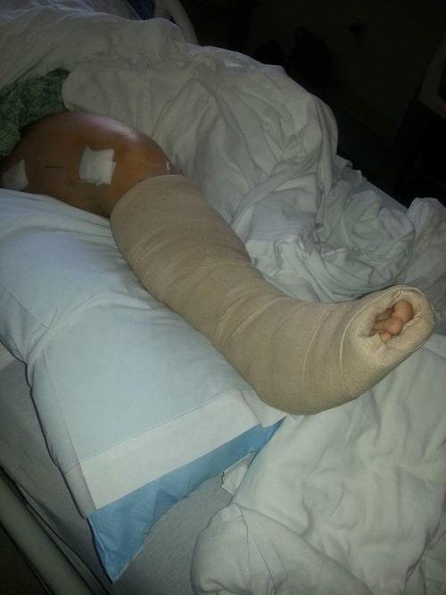 Autonehoda spravila zo ženy