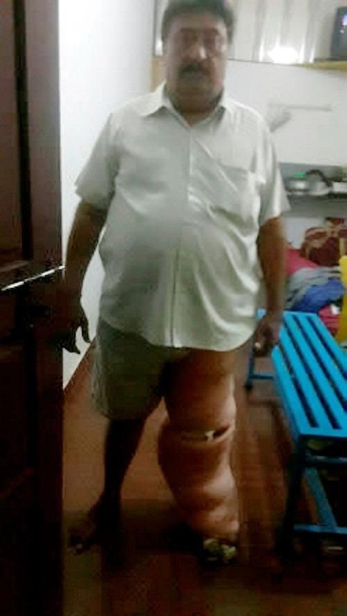 FOTO Muža poštípal komár: