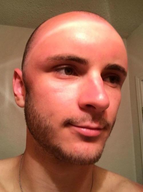 Mladík si oholil hlavu