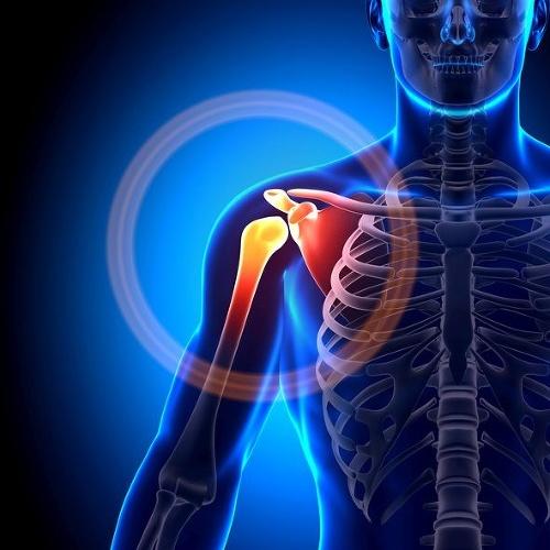 Kosť v krku, otrava