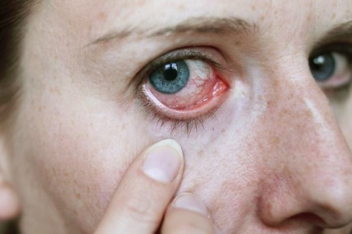 Žena stratila kontaktnú šošovku:
