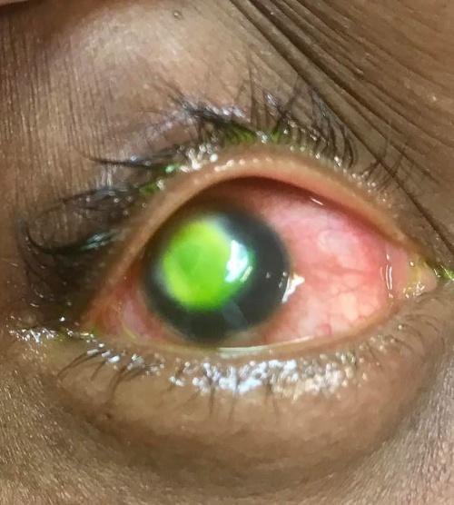 e56186416 Nikdy nespite s kontaktnými šošovkami! Šokujúce FOTO oka, baktérie ...