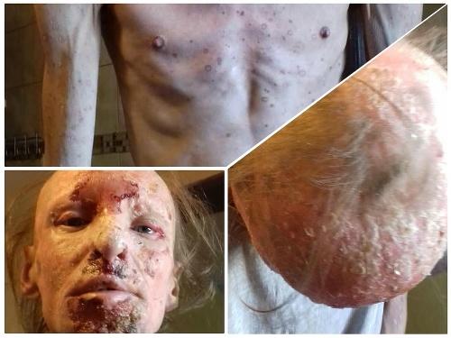 Muž trpí vážnou kožnou