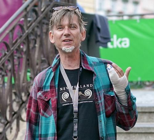f2d2d44982e89 Dochrámaný český herec s obviazanou rukou: Bitka s kolegom ...