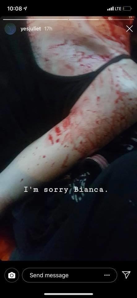 Biancu zavraždil jej priateľ,
