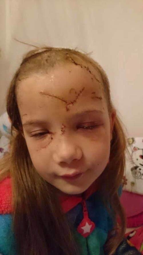 Dieťa napadol pes bez