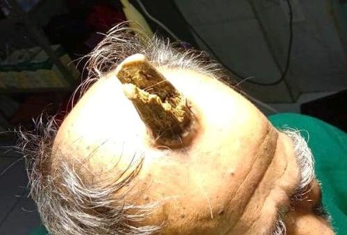 Mužovi (74) na hlave