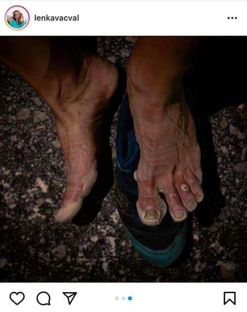 FOTO Zničené nohy slovenskej