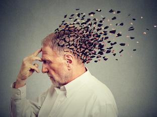 Nedovoľte, aby váš mozog