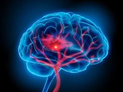 5 návykov, ktoré poškodzujú vašu pamäť a mozog: Prestaňte s nimi skôr než bude neskoro