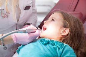 Koniec zubnému amalgámu u