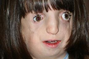 Treacher Collins syndrom: Deti,