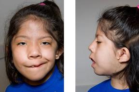 Goldenharov syndróm: Aký život