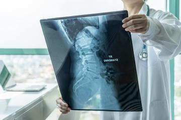 Pacienti s SMA: pandémiou