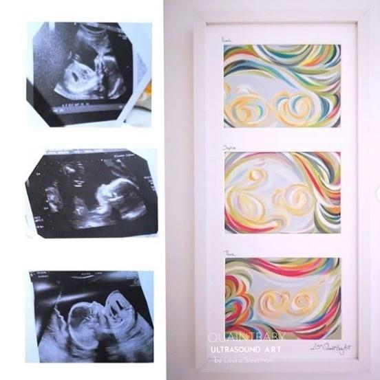 Fotky z ultrazvuku úplne
