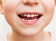 Najčastejším chronickým ochorením detí