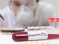 Vírusová hepatitída je zápalové