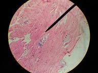 Trichinella spiralis. Foto: Gettyimages.com