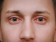 Zápal očných spojiviek. Ilustračné