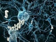 Beta-amyloidné plaky pri Alzheimerovej