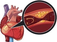 Ateroskleróza. Foto: Gettyimages.com