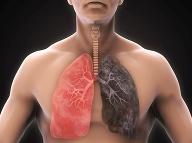 Zdravé pľúca verzus pľúca