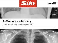 Takto vyzerajú zdravé pľúca.