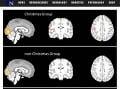 Aktivačné mapy ukazujúce oblasti výrazného zvýšenia mozgovej aktivity v jednotlivých skupinách. (Foto: screenshot neurosciencenews.com)