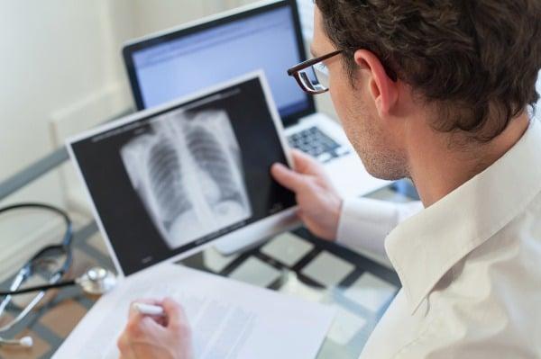 Chronická obštručná choroba pľúc