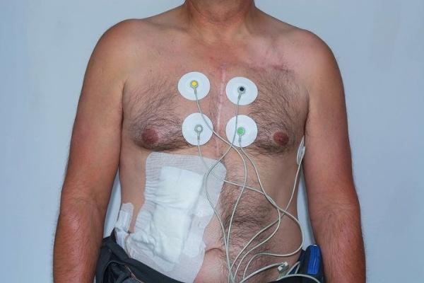 Transplantácia im zmenila život: