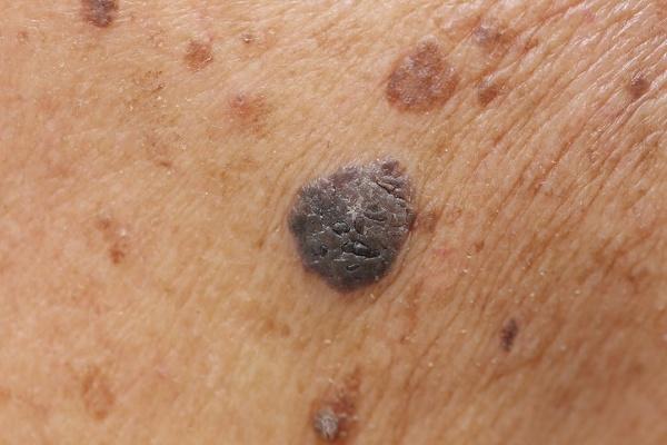 Najväčšie mýty o rakovine