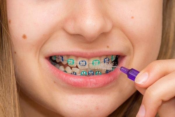 Krivé zuby už dávno