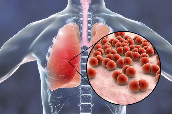 Najčastejšia komplikácia chrípky u