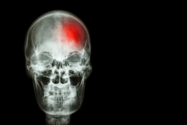 Silná bolesť hlavy ako